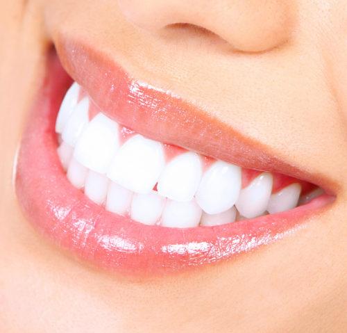 Quelques trucs pour conserver de belles dents blanches
