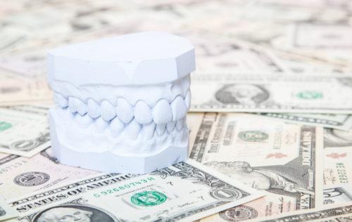 Combien un traitement orthodontique coûte-t-il ?